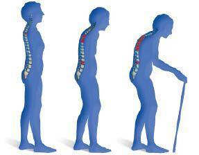 magnesium helpt bij osteoporose